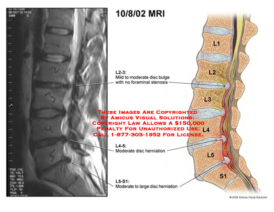I'm a 38 year old runner and triathlete who is two months into treatment for a severely herniated disk at L5-S1. Has anyone else returned to physical activity from a similar back injury? What was the time frame? Did your back pain completely go away?