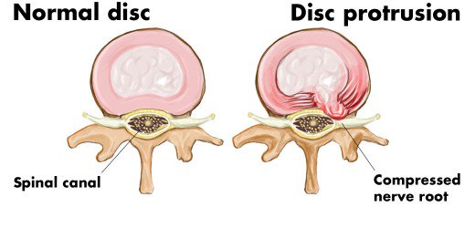 Is a microdiscectomy a permanent treatment for disc prolapse?