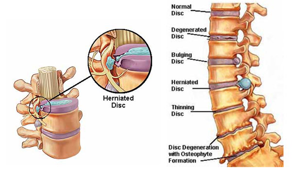 What is the best way to strengthen my lower back after suffering from a herniated disc?