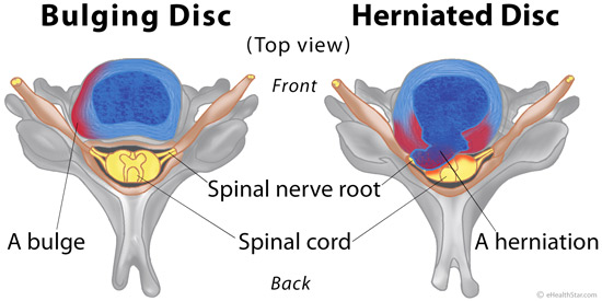 How can we treat a posterior disc bulge?