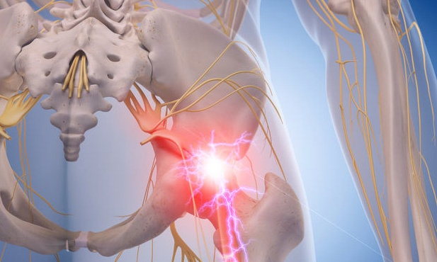 Does sciatica pain in S1 always mean there is a ruptured or herniated disc problem?