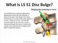 How can I treat L5-S1 Disc bulge which is causing a pinched nerve?