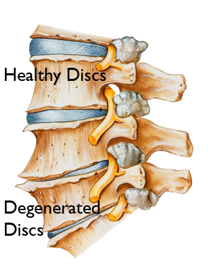 How bad can lower back pain get when you have degenerative discs?