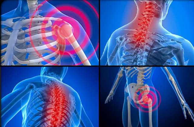 How does fibromyalgia, neuropathy pain, I.B.S., and MS come together with sciatica, spinal stenosis, and herniated disks on nerves?