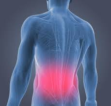 Do you have low back pain that is not getting better? If so, what have you done about it? Has it worked?