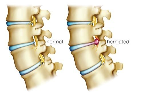 What is the right treatment for a herniated disc? My wife has had it for the last week and she is always crying because of the pain.