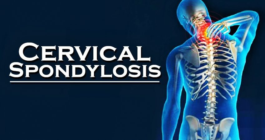 What is the permanent cure or solution for cervical spondylosis?